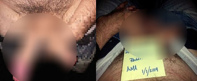 om cu două penisuri