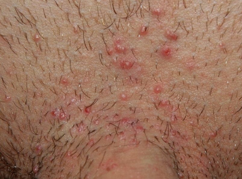 Negii sau verucile: metode de tratament